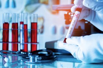 Coronavirus : 339 nouveaux cas confirmés en Ukraine