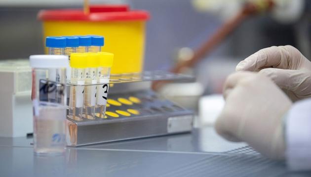 Минздрав утвердит алгоритм тестирования на антитела в ближайшие дни