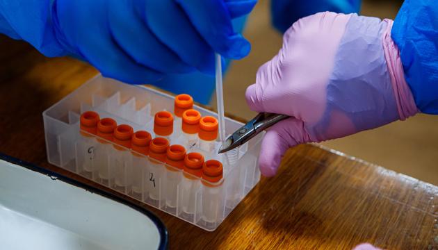 На Вінниччині зафіксували 18 нових випадків COVID-19