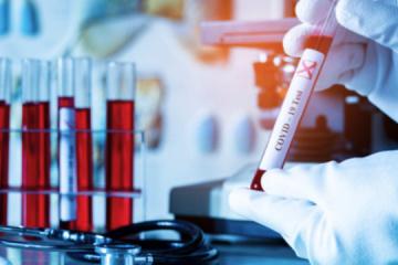 Kyiv reports 53 new coronavirus cases