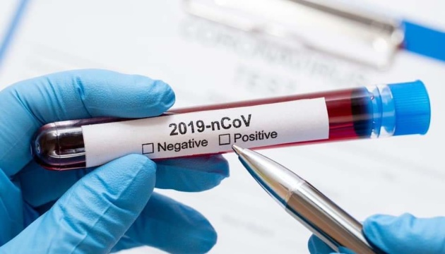 У світі кількість хворих на COVID-19 перевищила 33 мільйони