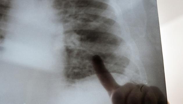 На Житомирщині у всіх госпіталізованих із COVID-19 діагностували пневмонію