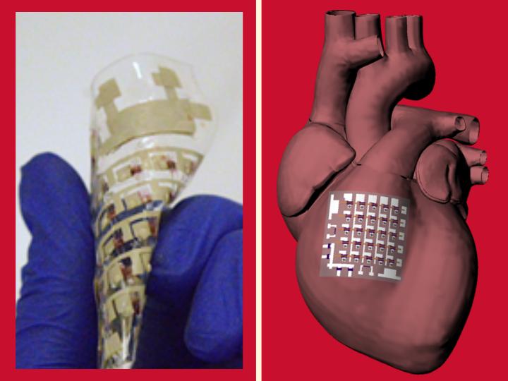 В США создали имплант для мониторинга сердца с аритмией и инфарктом