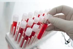 Антитіла після COVID-19 зберігаються вісім місяців