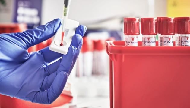 В Африці розробили швидкий тест на коронавірус вартістю $1