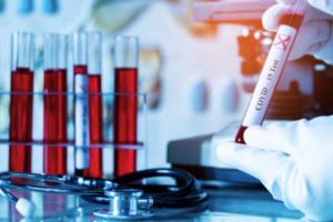 Coronavirus : l'Ukraine recense 14 496 nouveaux cas et 243 décès en 24h