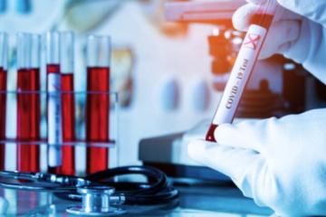 Kyiv reports 1,374 new coronavirus cases