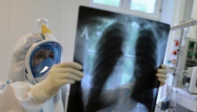 Detectan 2.000 casos de reinfección por coronavirus en Ucrania