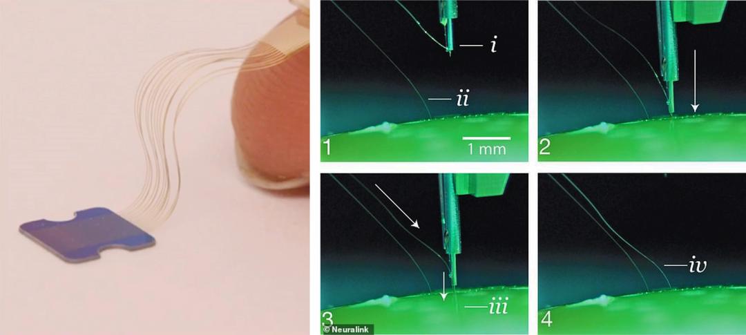 чіп розмірами 4х4 мм, що імплантується на поверхню мозку