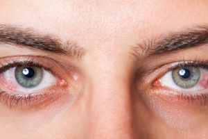 Ученые назвали «глазные симптомы» коронавируса