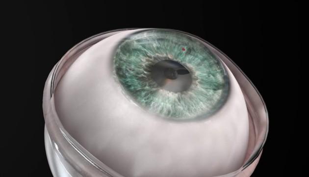 Штучна рогівка повернула зір чоловіку, який був незрячим 10 років