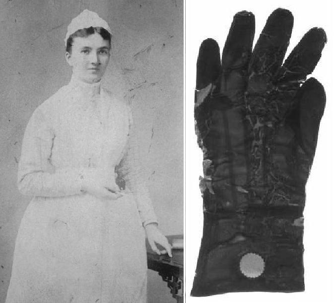 Керолайн Хемптон та перші зразки гумових хірургічних рукавичок