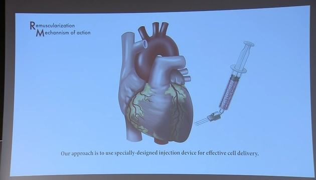 Вчені спробують лікувати серцеву недостатність стовбуровими клітинами