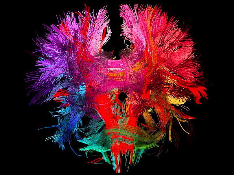 Модель зв'язків людського мозку