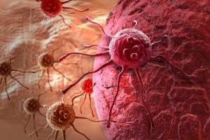 Ученые назвали главную причину рака поджелудочной железы
