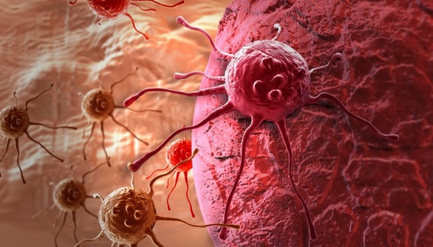 Вчені назвали головну причину раку підшлункової залози