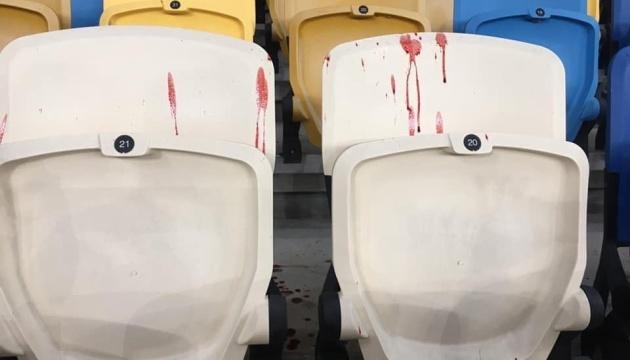 Полиция открыла дело из-за драки с участием фанатов на «Олимпийском»
