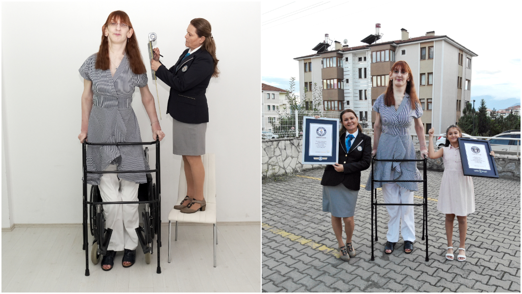 Самой высокой в мире женщиной стала турчанка. Ее рост - 215 см (ФОТО, ВИДЕО) 1