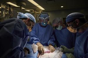 У США вперше успішно пересадили людині нирку, вирощену в тілі свині